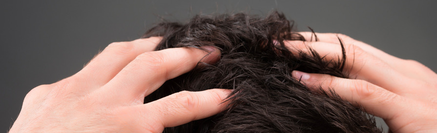 Does Body Hair Transplant Look Natural